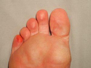 Look after your feet   BARAKA